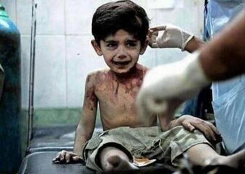 dolor de amor niño sirio